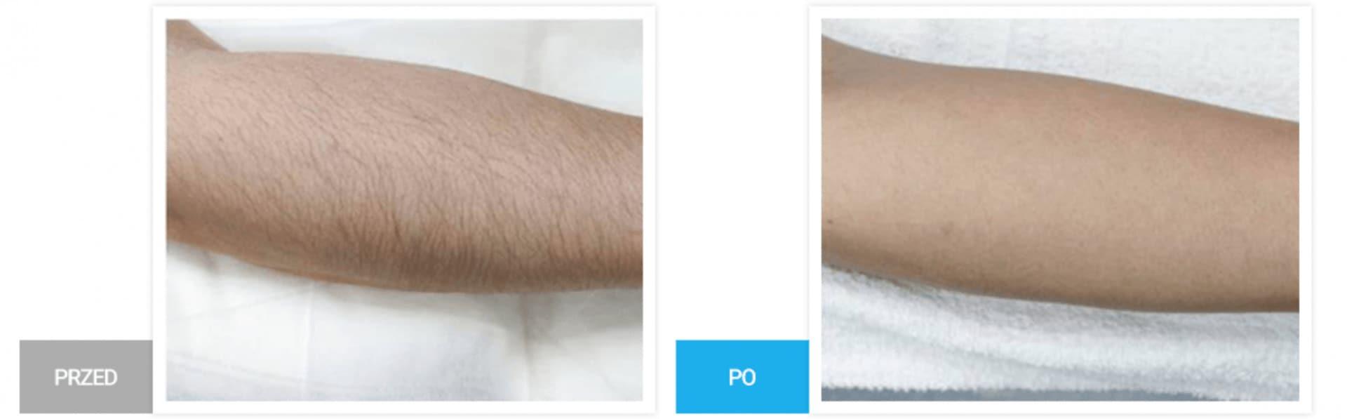Zrzut ekranu 2018 04 10 o 07.37.18 1 Depilacja laserowa Warszawa Chromatica XL