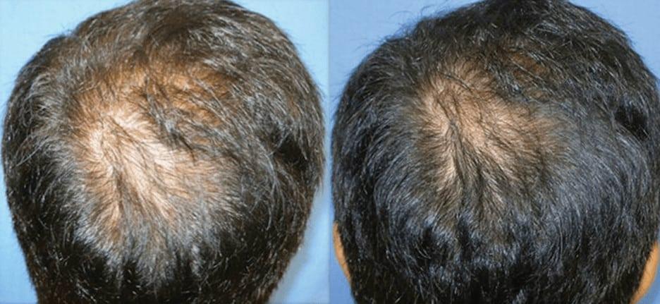DERMAPEN Zdj©cia przed i po leczenie ąysienia 01 DERMAPEN
