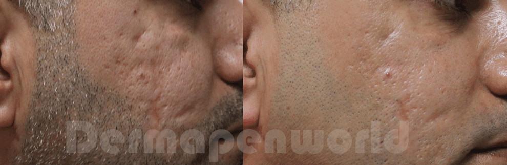 DERMAPEN Zdj©cia przed i po leczenie blizn potr•dzikowych 01 DERMAPEN