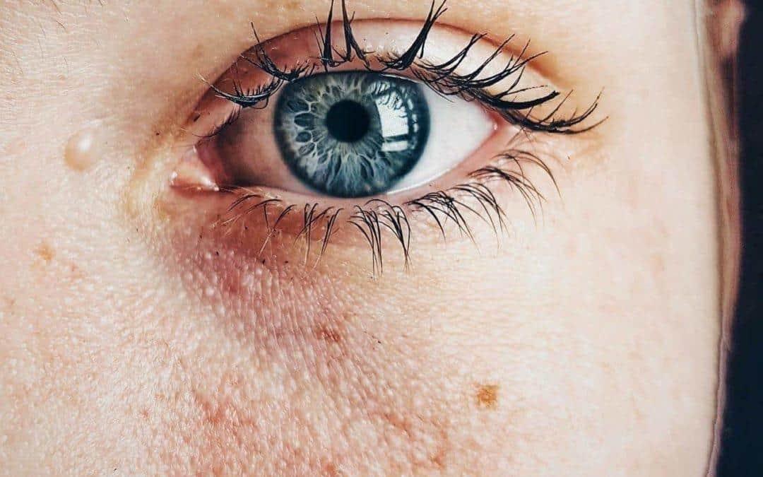 Przebarwienia – przyczyny powstawania i sposoby na pozbycie się problemu
