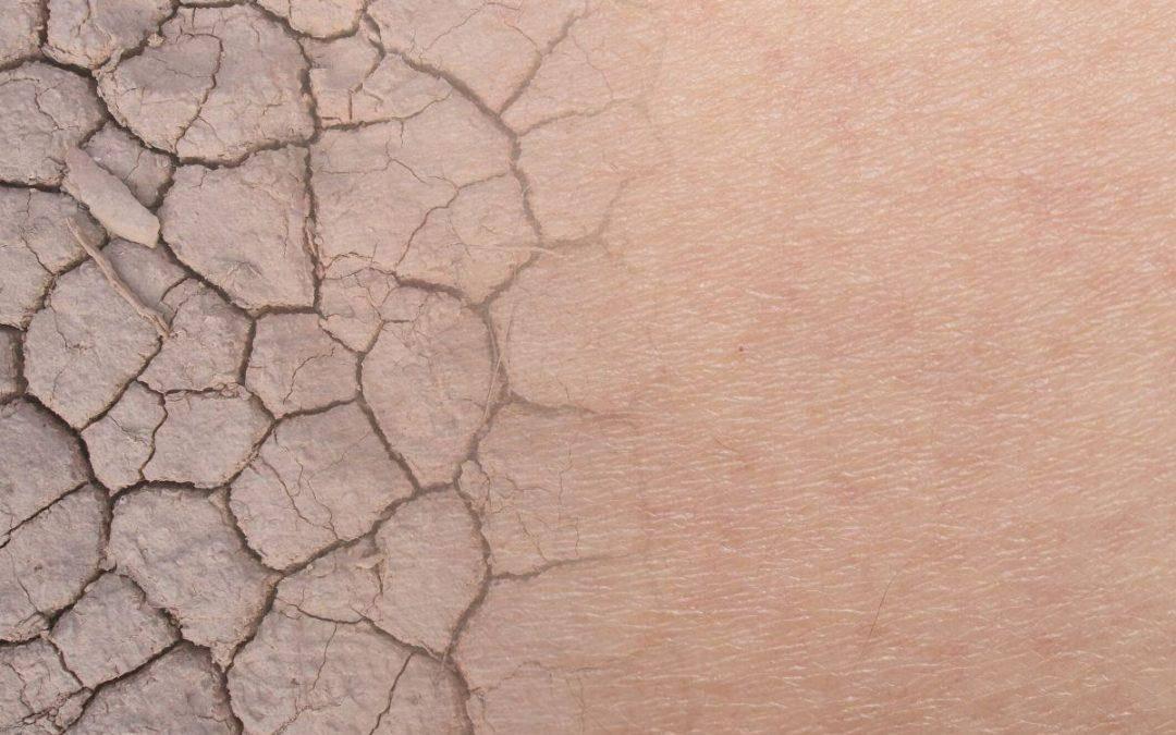 Twoja skóra traci jędrność? Sprawdź dlaczego